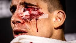 Kickbokser Rico Verhoeven zwaar gehavend na zijn gevecht tegen Jamal Ben Saddik (foto: ANP 2021/Remko de Waal).