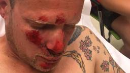Mike liep een gebroken neus, oogkas en kaak op door de val.