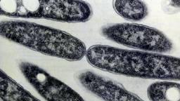 Legionellabacterie. Foto: ANP
