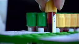 Q-koorts onderzoek (archieffoto)