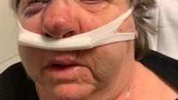 De vrouw had gebroken jukbeenderen en een gebroken neus. Foto: Facebook/Babette Hermans