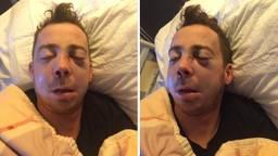 Niels Janssen uit Zeeland in het ziekenhuis nadat hij eind december zwaar mishandeld was (Foto: Nanda Janssen).