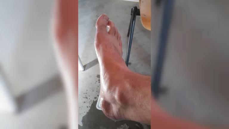 Arie had een hele zwelling op zijn voet nadat hij door vijftig wespen was gestoken (Foto: Arie Benschop).