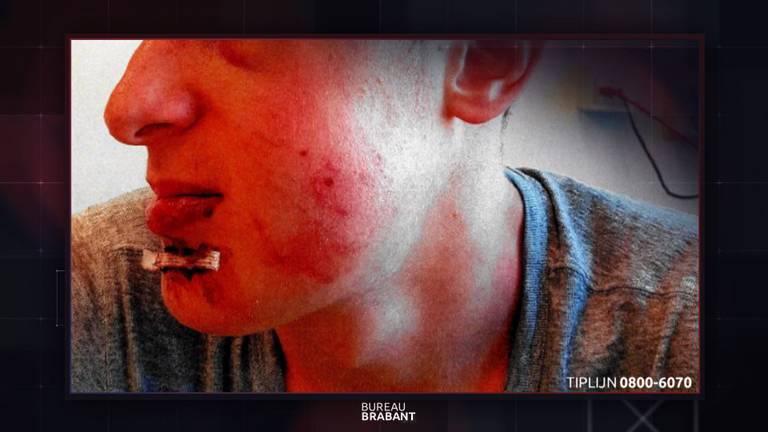 De jongen werd zwaar mishandeld. (Beeld: Bureau Brabant)